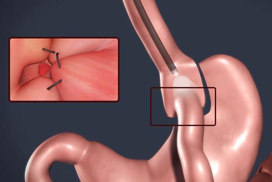 Métodos de rescate de cirugías bariátricas antiguas